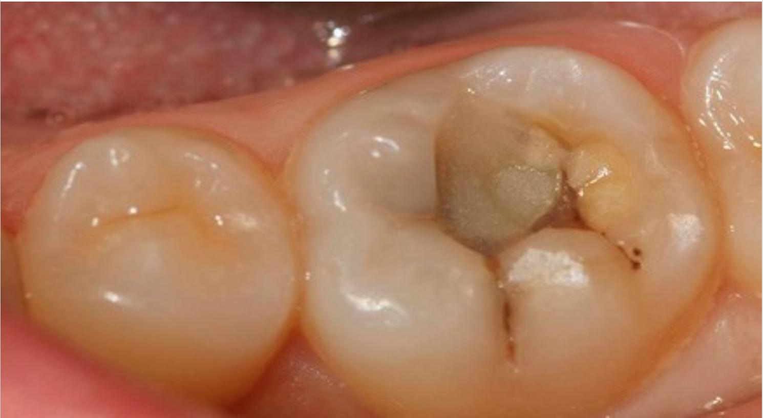 Гной в зубах можно ли удалять