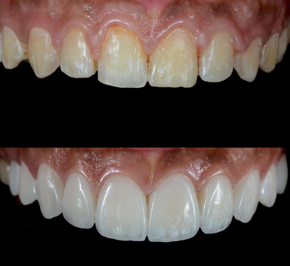 фото зубов с винирами любят рисовать